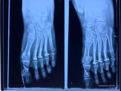 operațiunea tranzacției pe complicațiile piciorului unguent de crăciun din varicoză